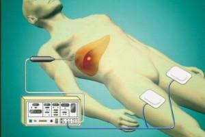 図1:ラジオ波治療の模式図